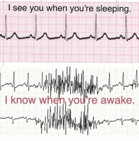 Memes, Patient, and Nursing: see you when you're sleeping  I know when you're awake 🎅 Brushing your teeth? Working with PT? Eating lunch? Doesn't matter since the beeper won't stop reading that artifact as VTach 😫 ... But when in doubt, Check the patient! 👩‍⚕️👨‍⚕️Repost from @christinabandy! Artifact Rest Awake Sleep NSR Sinus Artifact TeethBrushing StopItPlease AlarmFatigue IStillRunInTho CheckThePt EKG Nursing NurseLife Nurse NursingProblems Tele Telemetry Cardiology