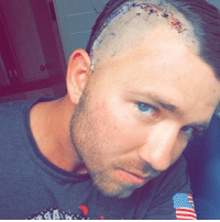Life, Memes, and Brain: Sgt Zachary Ray of 1st Force Recon has suffered 7 TBI's after close to 9 years of service. This ultimately resulted in brain surgery on the 7th of June. He is determined to recover as fast as possible and not allow this to slow his life or passions. Check him out: @raymondsterling2036 🇺🇸 Semper Fi