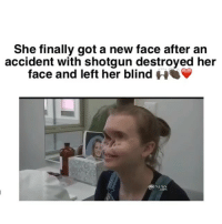 Drake, Gym, and Memes: She finally got a new face after an  accident with shotgun destroyed her  face and left her blind HOO  dbo NEWS Wow . God bless her ❤️❤️ • Follow @homeofnochill for more IG BACKUP PAGE : @homeofnochilltv SNAPCHAT : HOMEOFNOCHILL TWITTER : homeofnochill YOUTUBE : HOMEOFNOCHILL . • • • • ➖➖➖➖➖➖➖➖➖➖➖➖➖➖➖➖➖ drake mtv keepingupwiththekardashians fifthharmony yeezy gym weed kimkardashian kanyewest jayz justinbieber photooftheday picoftheday like4like chrisbrown nochill meekmill nickiminaj snoopdogg kyliejenner photooftheday lol souljaboy theweeknd ratchet camilacabello beyonce rihanna youngma mileycyrus ➖➖➖➖➖➖➖➖➖➖➖➖➖➖➖➖➖