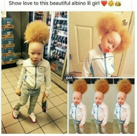 Beautiful, Love, and Memes: Show love to this beautiful albino lil girl Repost from @blackmattersus Because you need this beautiful black girl with albinism and honey hair on your timeline😍 blackexcellence blackpride blackandproud blackpower blackbeauty blackisbeautiful blackgirlmagic blackgirlsrock naturallyshesdope blackgirl blackgirls blackwomen blackwoman blackout blackqueens blackmodel blackmodels blackgirlskillingit melaninonfleek melaninpoppin africanamerican melanin ebony panafrican blackcommunity problack brownskin
