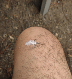 Sitting at a picnic bench and got gum stuck in my upper knee hair.: Sitting at a picnic bench and got gum stuck in my upper knee hair.
