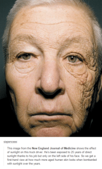 Dank, 🤖, and Skins: SIXpenceee:  This image from the New England Journal of Medicine shows the effect  of sunlight on this truck driver. He's been exposed to 25 years of direct  sunlight thanks to his job but only on the left side of his face. So we get a  first-hand view at how much more aged human skin looks when bombarded  with sunlight over the years.