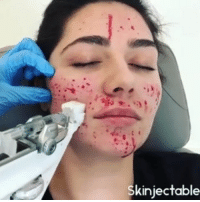 Videos, Girl, and Toronto: Skiniectable Microneedling with Redensity 1! Want to know more about what's going on? Follow @skinjectables for more lip injection, skincare, and Botox videos daily! . . . toronto injectionstoronto injections skincare lipinjections lips liplove skin beauty antiaging botox filler transformation microneedling acnescarring acne