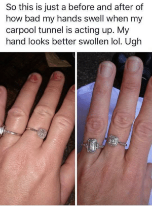 Bad, Lol, and Acting: So this is just a before and after of  how bad my hands swell when my  carpool tunnel is acting up. My  hand looks better swollen lol. Ugh Another poor soul with carpool tunnel