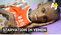 Saida is 18 years old. She's severely malnourished.  She's just one of many people experiencing the horrors of the war in Yemen.: STARVATION IN YEMEN Saida is 18 years old. She's severely malnourished.  She's just one of many people experiencing the horrors of the war in Yemen.