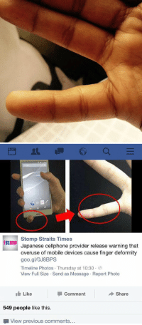 Holy shit. Saw this on twitter and i looked at my finger and I'm like damnnnnn 😳: Stomp Straits Times  Stomp  Japanese cellphone provider release warning that  overuse of mobile devices cause finger deformity  goo.gl/OJ8BPS  Timeline Photos Thursday at 10:30  View Full Size Send as Message Report Photo  Like  Comment  Share  549 people like this.  View previous comments... Holy shit. Saw this on twitter and i looked at my finger and I'm like damnnnnn 😳