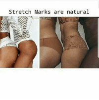 Crazy, Dank, and Drake: Stretch Marks are natural  girlfitness Do you have stretchmarks? Yes or no - - - love memesdaily Relatable dank girl Memes Hoodjokes Hilarious Comedy Hoodhumor Zerochill Jokes Funny Kanywest Kimkardashian litasf Kyliejenner Justinbieber Squad Crazy Omg Accurate Kardashians Epic bieber Photooftheday Tagsomeone trump rap drake
