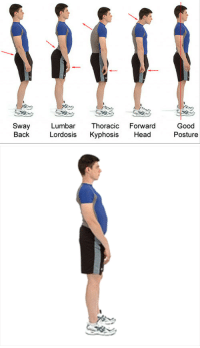 "Bailey Jay, Gif, and Head: Sway Lumbar Thoracic Forward Good  Back Lordosis Kyphosis Head  Posture <p><img height=""200"" src=""https://78.media.tumblr.com/a57a397ea38a02ce14396961a881de97/tumblr_inline_mh1lzgKxeF1qhy6fn.gif"" width=""267""/></p>"