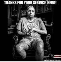 """America, Journey, and Memes: THANKS FOR YOUR SERVICE HERO!  AMERICAN VETERANS Sgt. Joel Tavera, now 26, was severely burned and blinded and lost a leg in Iraq at age 20. More than 90 surgeries later, he has this to say about his journey thus far: """"Looks are deceiving. ... What looks like a half empty glass is actually three-quarters full."""" americanveterans veterans usveterans usmilitary usarmy supportveterans honorvets usvets america usa patriot uspatriot americanpatriot supportourtroops godblessourtroops ustroops americantroops semperfi military remembereveryonedeployed deplorables deployed starsandstripes americanflag usflag respecttheflag marines navy airforce"""
