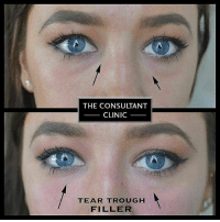 The CONSULTANT CLINIC TEAR TROUGH FILLER Some More of Our Dr