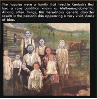 Memes, Kentucky, and 🤖: The Fugates were a family that lived in Kentucky that  had a rare condition known as Methemoglobinemia.  Among other things, this hereditary genetic disorder  results in the person's skin appearing a very vivid shade  of blue. https://t.co/AvwD14vqaW