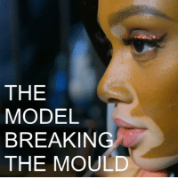​21 NOV: Winnie Harlow rose to fame on the TV show America's Next Top Model. The Canadian model has vitiligo, a condition which causes patches of skin to lose their normal pigment. However she says the condition does not define her and she hopes more women like her will be on the covers of magazines. Find out more about BBC 100 Women: bbc.in-100women @winnieharlow WinnieHarlow Model Toronto Canada ANTM 100Women @BBC100women BBCShorts BBCNews @BBCNews: THE  MODEL  BREAKING  THE MOULD ​21 NOV: Winnie Harlow rose to fame on the TV show America's Next Top Model. The Canadian model has vitiligo, a condition which causes patches of skin to lose their normal pigment. However she says the condition does not define her and she hopes more women like her will be on the covers of magazines. Find out more about BBC 100 Women: bbc.in-100women @winnieharlow WinnieHarlow Model Toronto Canada ANTM 100Women @BBC100women BBCShorts BBCNews @BBCNews