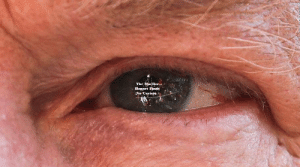 Eye, Why, and Picture: The Mueller  Report Finds  No Coyfefe See why this picture of Trump's eye is going viral!
