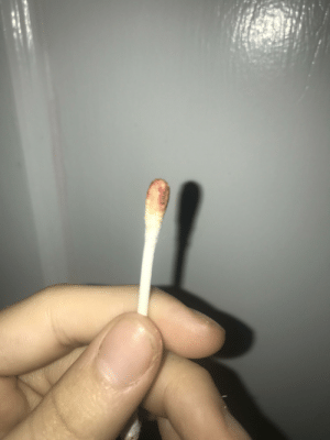 The q-tip has some blood on it after I put it in my ear...: The q-tip has some blood on it after I put it in my ear...