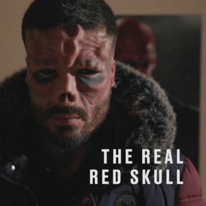 This man has pushed the boundaries of body modification to look like Marvel's 'Red Skull'. He's now opened up about life before surgery and why he decided to make such a drastic change.: THE REAL  RED SKULL This man has pushed the boundaries of body modification to look like Marvel's 'Red Skull'. He's now opened up about life before surgery and why he decided to make such a drastic change.