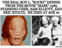 "THE REAL ROY L. ""ROCKY"" DENNIS  FROM THE MOVIE ""MASK"" 1985  STARRING CHER, SAMELLIOTT, AND  ERICSTOLTZ, HEDIED AT AGE 16  menness.com"