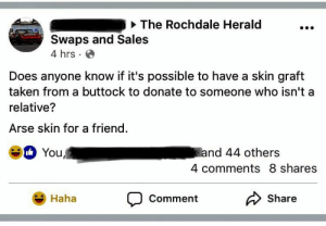 sales: The Rochdale Herald  Swaps and Sales  4 hrs  Does anyone know if it's possible to have a skin graft  taken from a buttock to donate to someone who isn't a  relative?  Arse skin for a friend.  You,  and 44 others  4 comments 8 shares  CommentShare