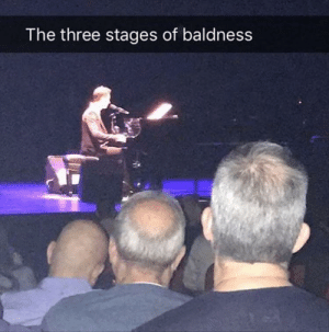 Three, Baldness, and The: The three stages of baldness Three Stages