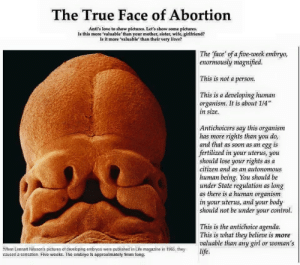 """shitantichoiceprotesterssay:  Have some truth in the mix of all the bullshit : The True Face of Abortion  Anti's love to show pictures. Let's show some pictures.  Is this more 'valuable' than your mother, sister, wife, girlfriend?  Is it more 'valuable' than their very lives?  The face' of a five-week embryo,  enormously magnified.  This is not a person.  This is a developing human  organism. It is about 1/4""""  in size.  Antichoicers say this organism  has more rights than you do,  and that as soon as an egg is  fertilized in your uterus, you  should lose your rights as a  citizen and as an autonomous  human being. You should be  under State regulation as long  as there is a human organism  in your uterus, and your body  should not be under your control.  This is the antichoice agenda.  This is what they believe is more  valuable than any girl or woman's  life.  When Lennart Nilsson's pictures of developing embryos were published in Life magazine in 1965, they  caused a sensation. Five weeks. The embryo is approximately 9mm long. shitantichoiceprotesterssay:  Have some truth in the mix of all the bullshit"""