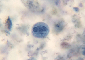 This amoeba I saw through the microscope: This amoeba I saw through the microscope