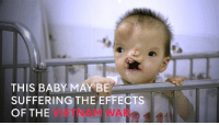 Memes, Suffering, and 🤖: THIS BABY MAY BE  SUFFERING THE EFFECTS  OF THE Scientists think these life-threatening birth defects are related to a war that ended four decades ago.