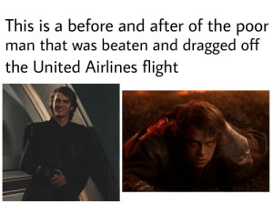 scifiseries:  Reddit is trying to hide the truth: This is a before and after of the poor  man that was beaten and dragged off  the United Airlines flight scifiseries:  Reddit is trying to hide the truth