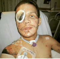 This is a real hero. On November 21, 2010 a grenade was thrown at Kyle Carpenter's sandbagged position. Instead of running away, Carpenter used his own body to shield the other Marines from the blast. Miraculously Carpenter lived and was awarded the Medal of Honor. https://t.co/gg4JIZgiRu: This is a real hero. On November 21, 2010 a grenade was thrown at Kyle Carpenter's sandbagged position. Instead of running away, Carpenter used his own body to shield the other Marines from the blast. Miraculously Carpenter lived and was awarded the Medal of Honor. https://t.co/gg4JIZgiRu