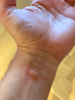 This mf'in mosquito caught my VEIN this morning, I slapped him dead in surprise, But he died happy  and full to bursting rest easy, you ambitious mfer https://t.co/F6X5nzdOo9: This mf'in mosquito caught my VEIN this morning, I slapped him dead in surprise, But he died happy  and full to bursting rest easy, you ambitious mfer https://t.co/F6X5nzdOo9