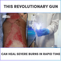 This revolutionary gun can heal burns in a matter of days.: THIS REVOLUTIONARY GUN  attn:  RENOVACARE  CAN HEAL SEVERE BURNS IN RAPID TIME This revolutionary gun can heal burns in a matter of days.