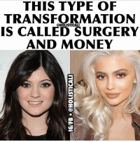 Facebook, Fake, and Memes: THIS TYPE OF  TRANSFORMATIONN  IS CALLED SURGERY  AND MONEY  @HOLISTICALI Follow ➡️ @holisticali When we have youth looking up to these clowns and they go ahead and do things like this and promote it as beauty. They can surely do what they want, and I can bring awareness to it as well. This isn't beauty, this is fake, we're going to be living in a plastic world. Embrace your own Natural beauty. The fact that the media convinces many that they need to conform to their idea of beauty is a tragedy and people are losing their uniqueness. I am bringing awareness to an issue that most people are blind to. If you have people who idolize her, then bringing awareness to her actions isn't something that's unwarranted. Open your eyes to the truth, most people who do these types of things never lose the feeling of insecurity, they always will want to do more and more until they look like play doh . RealRawTruth HolisticAli PlasticWorld StopMakingStupidPeopleFamous IG 👉🏽 @realrawtruth FACEBOOK-YOUTUBE-SnapChat 👉🏽 @holisticali SUBSCRIBE TO NEW YOUTUBE LINK IN BIO