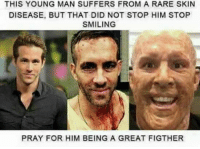 Lmao: THIS YOUNG MAN SUFFERS FROM A RARE SKIN  DISEASE, BUT THAT DID NOT STOP HIM STOP  SMILING  PRAY FOR HIM BEING A GREAT FIGTHER Lmao