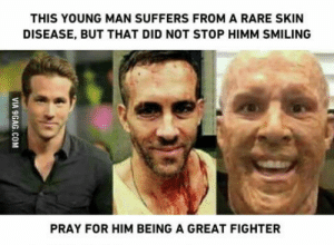 Rare, Him, and Skin: THIS YOUNG MAN SUFFERS FROM A RARE SKIN  DISEASE, BUT THAT DID NOT STOP HIMM SMILING  PRAY FOR HIM BEING A GREAT FIGHTER Pray for him. PLEASE.