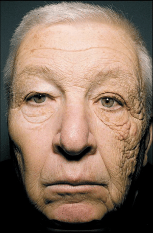 Truck driver, Billy McElligott, shows what 28 years of sun exposion can do to one's skin: Truck driver, Billy McElligott, shows what 28 years of sun exposion can do to one's skin