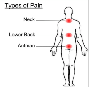 Antman, Pain, and Back: Types of Pain  Neck  Lower Back  Antman My bottom hurts