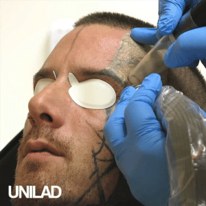 Dank, Tattoos, and Tattoo: UNILAD Watching tattoos being removed is so satysfing to watch 👌👀  GO! Tattoo Removal