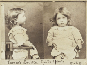 """urbanfantasyinspiration: love-god-herself:  love-god-herself:  onion-souls:  albaficalover:   luanna801:  nonlinear-nonsubjective:  1800snostalgia:   Mugshot of a 2-year-old Francois Bertillon, arrested for eating a basket of pears Follow for more 1800s nostalgia   #who the fuck arrested a two year old#what police officer was like YOU'RE COMING WITH ME SON#was it javert#i bet it was javert(x)  So actually these photos were taken by the kid's uncle, Alphonse Bertillon, who was a French police officer and inventor of the mug shot. These photos were just taken as a joke, probably when Bertillon was developing his mugshot technique and needed someone to practice on. No actual two-year-olds were arrested in the creation of these photos!   """"1880s nostalgia"""" with a pic from 1993 yes of course   There was also an 1893  From people thinking a toddler was actually arrested, to people somehow misreading """"1800s nostalgia"""" as """"1880s,"""" to this person thinking a fucking daguerreotype was taken in the 1990s… this whole thread was a ride I didn't expect to take today.    This is worse than the math post : urbanfantasyinspiration: love-god-herself:  love-god-herself:  onion-souls:  albaficalover:   luanna801:  nonlinear-nonsubjective:  1800snostalgia:   Mugshot of a 2-year-old Francois Bertillon, arrested for eating a basket of pears Follow for more 1800s nostalgia   #who the fuck arrested a two year old#what police officer was like YOU'RE COMING WITH ME SON#was it javert#i bet it was javert(x)  So actually these photos were taken by the kid's uncle, Alphonse Bertillon, who was a French police officer and inventor of the mug shot. These photos were just taken as a joke, probably when Bertillon was developing his mugshot technique and needed someone to practice on. No actual two-year-olds were arrested in the creation of these photos!   """"1880s nostalgia"""" with a pic from 1993 yes of course   There was also an 1893  From people thinking a toddler was actually arrested, to people somehow"""