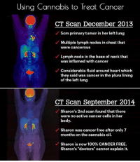 "Memes, Cannabis, and 🤖: Using Cannabis to Treat Cancer  CT Scan December 2013  M 5cm primary tumor in her left lung  Multiple lymph nodes in chest that  were Cancerous  Lymph node in the base of neck that  was inflamed with cancer  Considerable fluid around heart which  they said was cancer in the plura lining  of the left lung  CT Scan September 2014  Sharon's 2nd scan found that there  were no active cancer cells in her  body.  Sharon was cancer free after only 7  months on the cannabis oil.  Sharon is now 100%CANCER FREE.  Sharon's ""doctors"" cannot explain it."