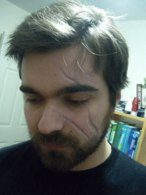 9gag, Got, and Who: VIA 9GAG OM To the 2 guys who have a scar on their face well I got 3