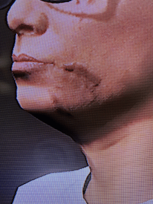 What is the mark on my characters face and how do I get rid of it?: What is the mark on my characters face and how do I get rid of it?
