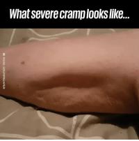 My leg hurts just watching this! 👀😭: What severe cramplooks like.. My leg hurts just watching this! 👀😭