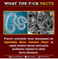 Bones, Dank, and French: WHAT THE FCK FACTS  mage source IFLScience  French scientists have developed an  Injectable Bone Cement Foam to  repair broken bones and solve  problems related to other  bone diseases.  FB.com/WhatThe Facts  @WhatTheFFacts  @WhatTheFFact