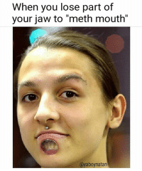 """Stay off that crystal, kids...: When you lose part of  your jaw to """"meth mouth""""  @yaboynatar Stay off that crystal, kids..."""