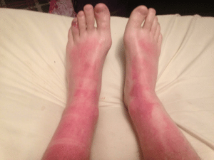 When you wear sunscreen all day and still get severally burned on Canada Day: When you wear sunscreen all day and still get severally burned on Canada Day