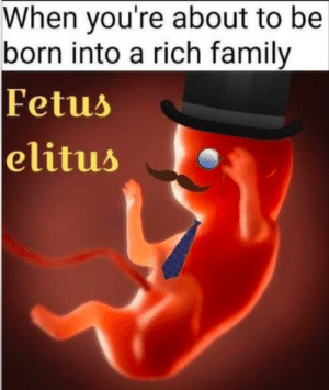 Pretty much: When you're about to be  born into a rich family  Fetus  elitus Pretty much