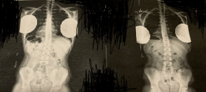Which one of these x-rays seems more bent/ curved? Left or right: Which one of these x-rays seems more bent/ curved? Left or right