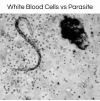 The power of the human body! #diplymix: White Blood Cells vs Parasite The power of the human body! #diplymix