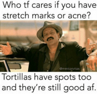 Hell yeah: Who tf c  stretch marks or acne?  ares if you have  @mexican.risas  Tortillas have spots too  and they're still good af Hell yeah