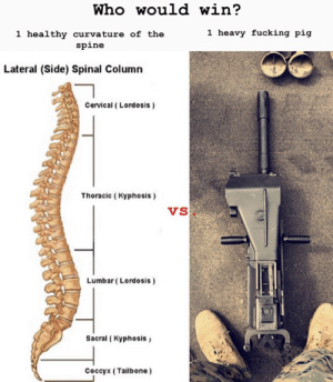 Fucking, Pig, and Who: Who would win?  1 heavy fucking pig  1 healthy curvature of thee  spine  Lateral (Side) Spinal Column  Cervical (Lordosis)  Thoracic (Kyphosis)  Vs  Lumbar (Lordosis)  Sacral ( Kyphosis  Coccyx (Tailbone)