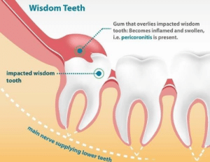 dentagama:  Pericoronitis is a dental condition in which the soft tissues around the erupting crown are swollen, red and inflamed.: Wisdom Teeth  Gum that overlies impacted wisdom  tooth: Becomes inflamed and swollen,  i.e. pericoronitis is present.  impacted wisdom..  tooth  ai  n nerve supplying lower teeth dentagama:  Pericoronitis is a dental condition in which the soft tissues around the erupting crown are swollen, red and inflamed.