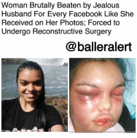 "Facebook, Friends, and Jealous: Woman Brutally Beaten by Jealous  Husband For Every Facebook Like She  Received on Her Photos; Forced to  Undergo Reconstructive Surgery  @balleralert  Matt Roper Woman Brutally Beaten by Jealous Husband For Every Facebook Like She Received on Her Photos; Forced to Undergo Reconstructive Surgery-blogged by @thereal__bee ⠀⠀⠀⠀⠀⠀⠀⠀⠀ ⠀⠀ A woman was forced to undergo reconstructive surgery on her face after her husband beat her for every Facebook 'like' she received. ⠀⠀⠀⠀⠀⠀⠀⠀⠀ ⠀⠀ 21-year-old Adolfina Camelli Ortigoza was rescued last week after being held captive in her home by her husband, Pedro Heriberto Galeano. ⠀⠀⠀⠀⠀⠀⠀⠀⠀ ⠀⠀ According to police, Galeano beat the young woman on a regular basis. When she was picked up by authorities, her face was said to be completely disfigured from a series of brutal attacks. ⠀⠀⠀⠀⠀⠀⠀⠀⠀ ⠀⠀ The woman's lawyer claimed Tuesday that 32-year-old Galeano would go into a jealous rage when anyone liked his wife's photos on Facebook. As punishment, he began to beat her for every like she received on her posts. ⠀⠀⠀⠀⠀⠀⠀⠀⠀ ⠀⠀ Galeano also took over her Facebook page, posting photos of her, and continuing to beat her whenever people reacted to the photos. ⠀⠀⠀⠀⠀⠀⠀⠀⠀ ⠀⠀ Lawyer Arnaldo Martinez expressed that Ortigoza was fearful of getting a notification because she knew it would result in a beating. ⠀⠀⠀⠀⠀⠀⠀⠀⠀ ⠀⠀ The victim also kept the matter to herself, as her friends had no clue that any of this was taking place. ⠀⠀⠀⠀⠀⠀⠀⠀⠀ ⠀⠀ Martinez said: ""Her mouth was all broken, she was very damaged, her skin was hanging off because of the blows. ⠀⠀⠀⠀⠀⠀⠀⠀⠀ ⠀⠀ ""He controlled the victim's social networking sites, he controlled the messages and photos, and for every 'like' she received from her friends, the woman received a beating because he accused her of having a relationship with them."" ⠀⠀⠀⠀⠀⠀⠀⠀⠀ ⠀⠀ Martinez said the only thing that saved the victim's teeth was that ""he would put a cloth in her mouth so that she would not scream during the brutal beatings that she suffered daily."" ⠀⠀⠀⠀⠀⠀⠀⠀⠀ ⠀⠀ Galeano's father reported his son to the police after he believed the woman would die from the last attack. ⠀⠀⠀⠀⠀⠀⠀⠀⠀ ⠀⠀ Ortigoza underwent reconstruction operations on the nasal septum and lips. Galeano was charged with attempted homicide, deprivation of liberty and coercion, which carry a maximum penalty of 30 years."